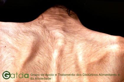 lanugo anorexia gatda tratamento